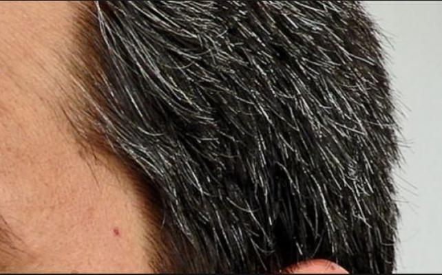 Saç Beyazlamasına Ne Neden Olur Beyazlanmaya Karşı Önlemler