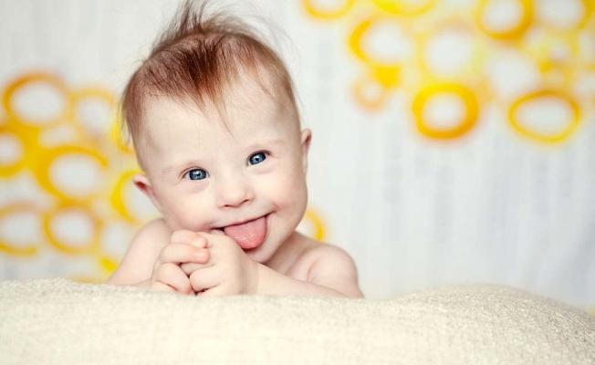 Bebeğimiz Down Sendromu Olup Olmadığını Nasıl Anlayabiliriz