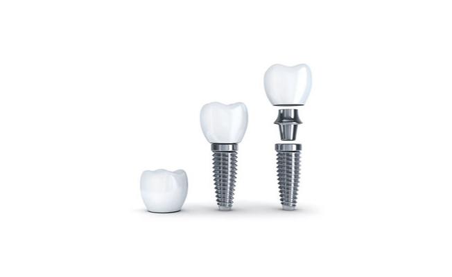 Diş İmplantı ve Ağız Sağlığının Hayatımızdaki Yeri
