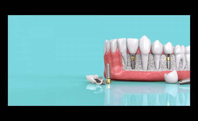 Diş İmplantının Önemi