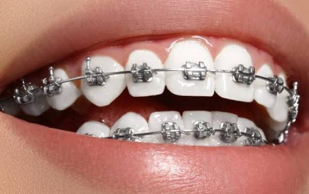 Diş Tedavilerinde En Doğru Klinik