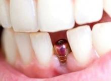 Diş İmplantı Nedir?