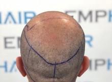 En İyi Saç Ekimi Teknikleri Hangileridir?