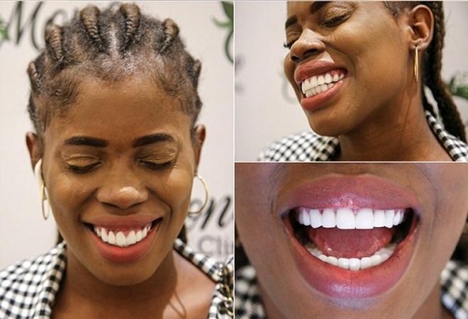 Ucuz Diş İmplantları Nasıl Yapılabilir